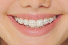 sapphire dental braces